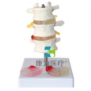 """""""康为医疗""""3节腰椎附2个病变椎间盘模型"""