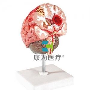 """""""万博手机手机登录app医疗""""脑中风模型"""