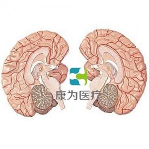 """""""万博手机手机登录app医疗""""左右脑带脑动脉分布模型 2部件"""