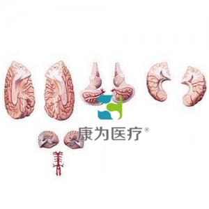 """""""康为医疗""""脑与脑动脉模型"""