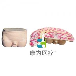 """""""康为医疗""""男性盆部横断断层解剖模型"""