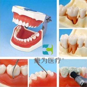 """""""万博手机手机登录app医疗""""牙周外科实习用牙列模型"""