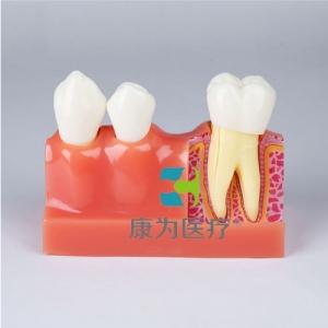 """""""康为医疗""""四倍牙齿分解模型"""