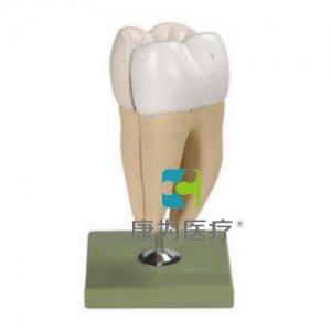 """""""康为医疗""""磨牙有两个牙根模型"""